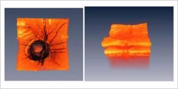 Foto: MIT Optics Group, J. Fujimoto