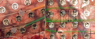 Foto: Neurosurgical Focus and University of Utah Department of Neurosurgery
